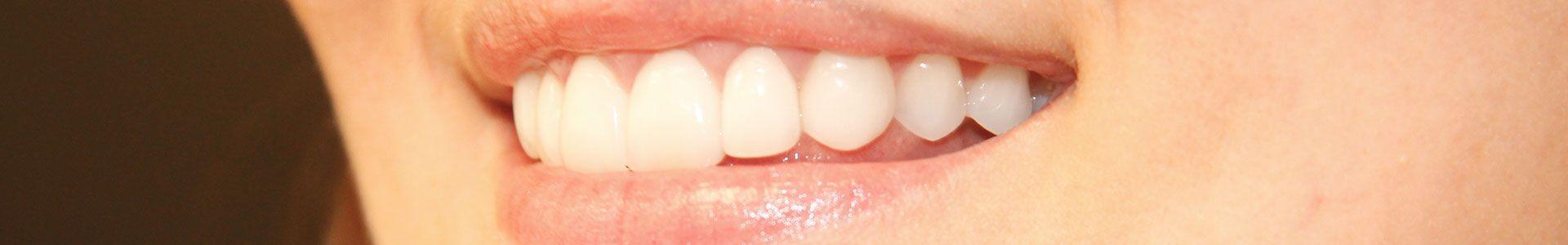 Tenha um lindo sorriso com Lente de Contato Dental