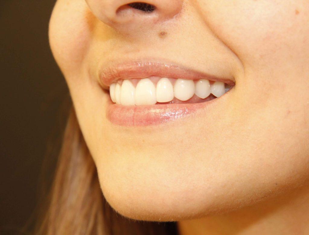 Possi usar Lente Dental