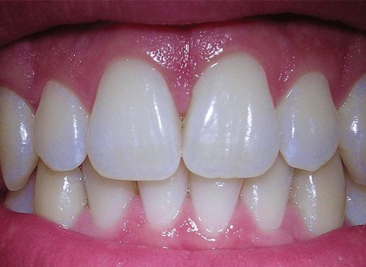 Nunces de cor com Lente de Contato Dental