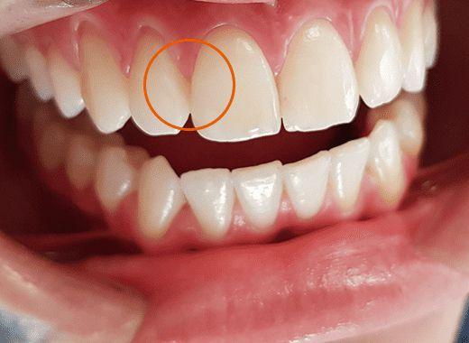 Ponto de Contato Dente