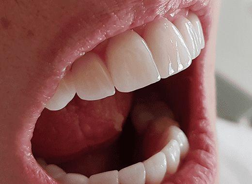 Textura das Lentes de Contato Dental