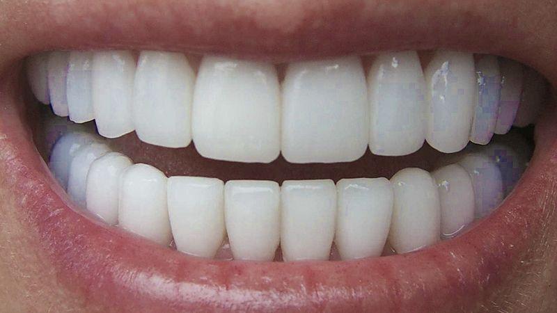Posso usar Lente de Contato Dental?