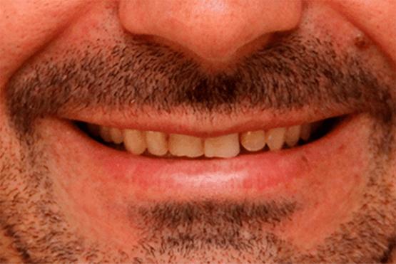 Lente de Contato Dental Antes