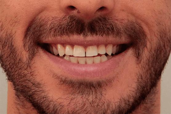 Lente de Contato Dental Antes 1