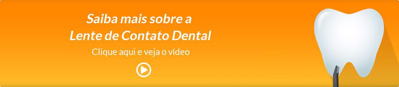Quando uma Lente de Contato Dental é indicada?