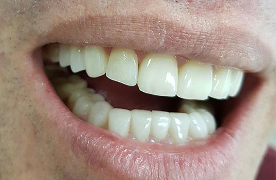 Restauracao de Lente de Contato Dental