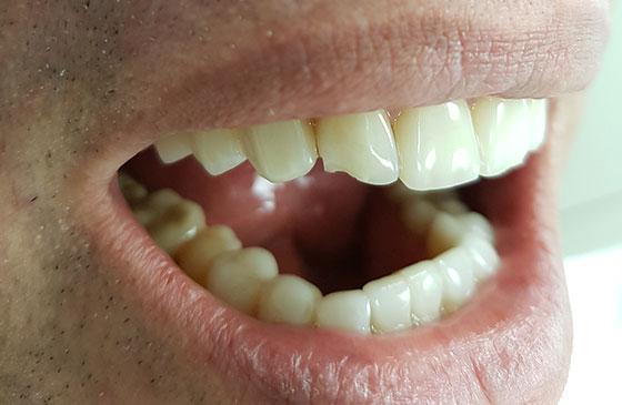 Restauração de Lente de Contato Dental