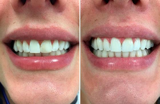Antes e Depois Faceta de Porcelana em um Dente