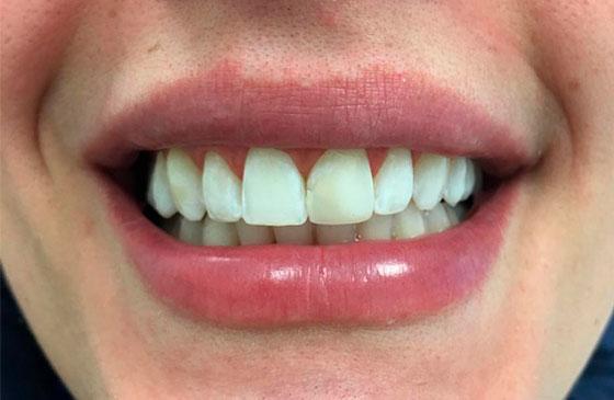 Antes Faceta de Porcelana em um Dente
