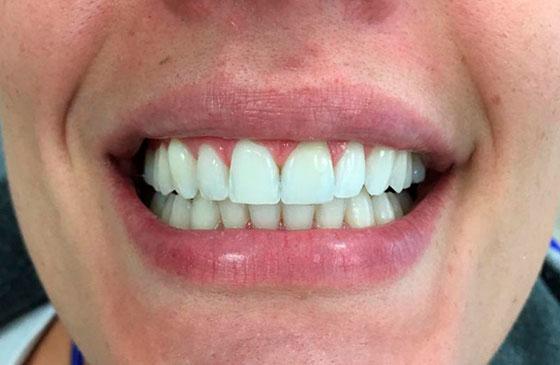 Depois Faceta de Porcelana em um Dente