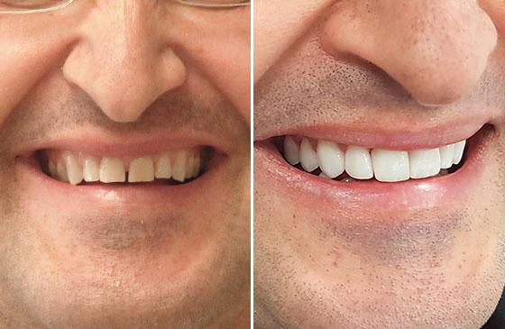 Lente de Contato Dental em 48 Horas Antes e Depois