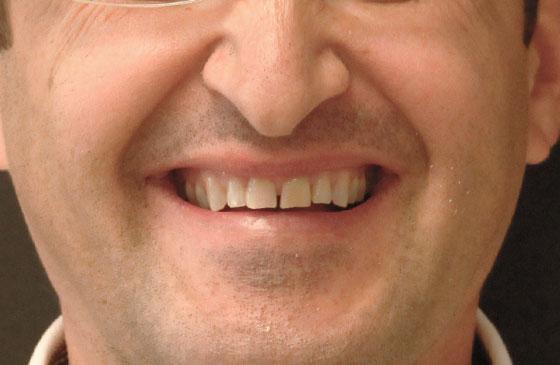 Lente de Contato Dental em 48 Horas Antes