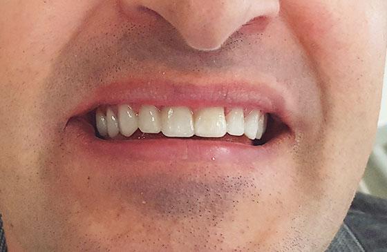 Lente de Contato Dental em 48 Horas DSD