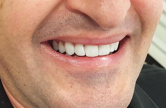 Lente de Contato Dental em 48 Horas Depois