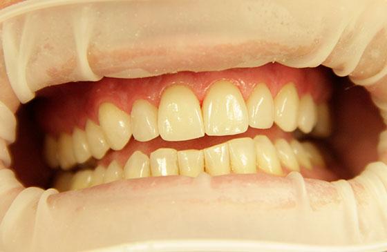 Lentes de Contato Dental depois
