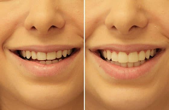 planejamento do sorriso antes e depois