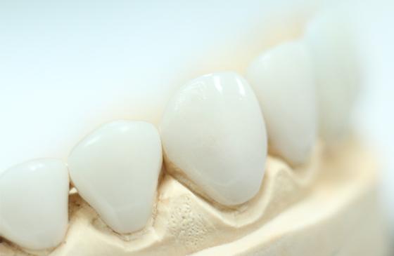 lente de contato dental de porcelana