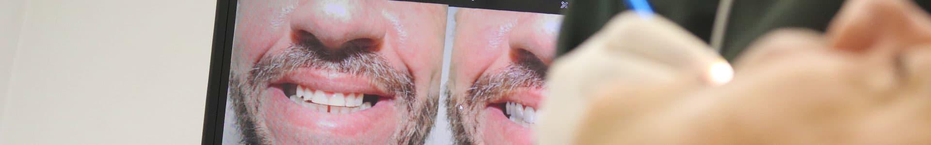 Teste do Sorriso é INCRÍVEL e permite antever resultado de tratamento!
