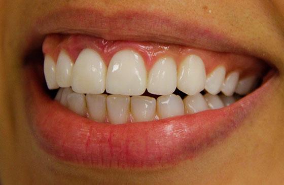 lente de contato dental apos fratura