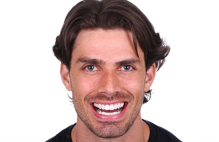 lente de contato dental ou clareamento