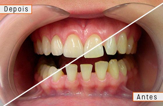 lente de contato para os dentes antes e depois