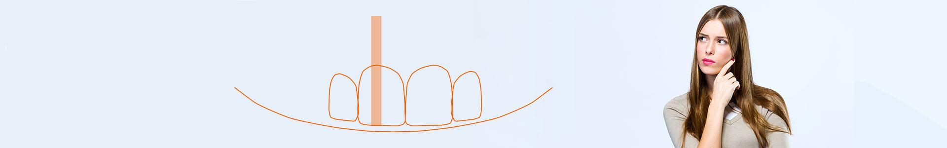 Aumentar Dentes Pequenos | Conheça as MELHORES técnicas para isso!