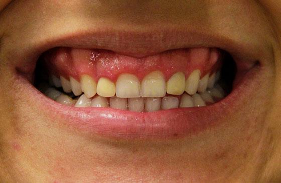 dentes pequeno