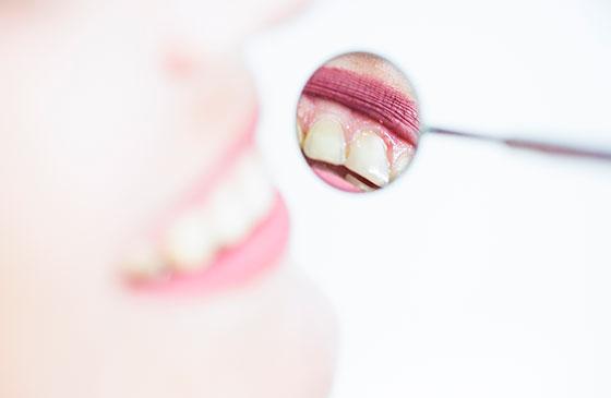 estetica dental definitiva