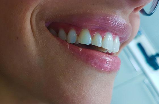 faceta em resina utilizada para aumentar dentes pequenos