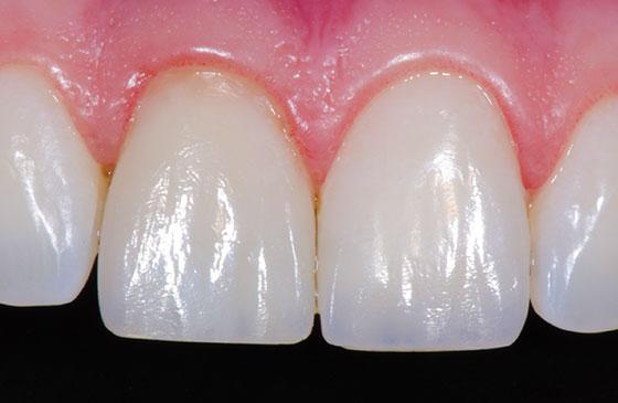 face do dente de resina