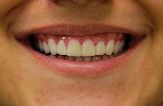 mockup para dente pequeno