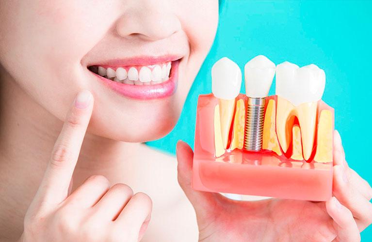 Tipos de Implantes Dentários | Qual é o melhor para você?