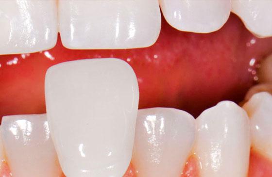 dente natural em porcelana