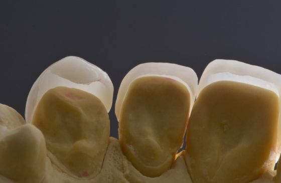 lente colocada sobre o dente