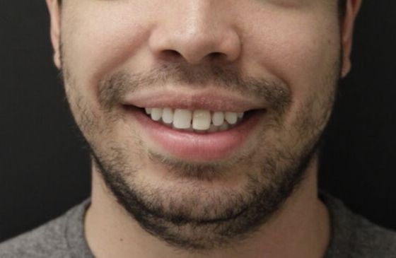 antes harmonizacao com lente de contato dental