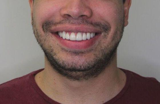 depois harmonizacao com lente de contato dental