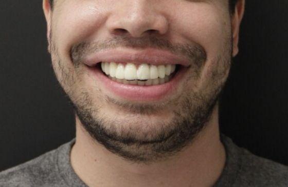 dsd teste do sorriso