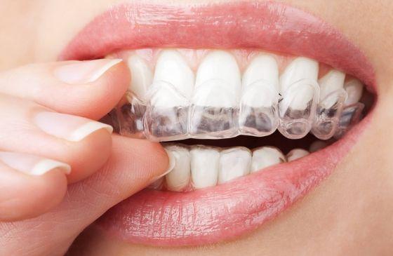 tecnicas de clareamento dental
