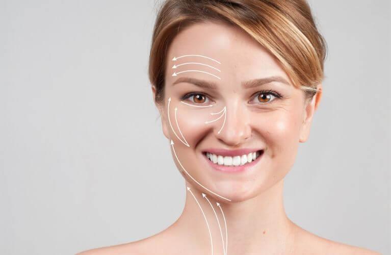 Lifting Facial com Fios de PDO