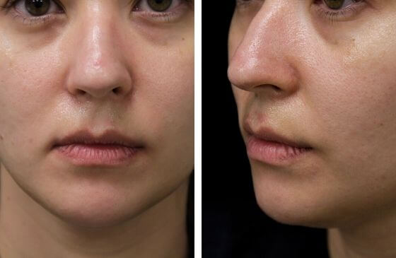 preenchimento labial antes
