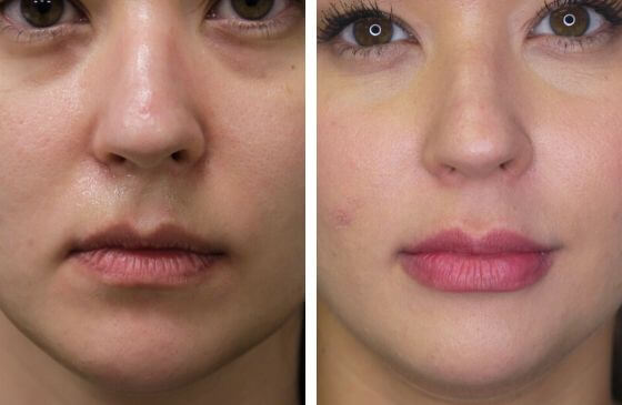 preenchimento labial antes e depois