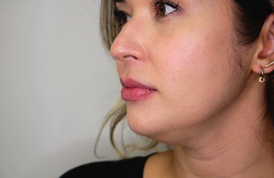 preenchimento labial depois