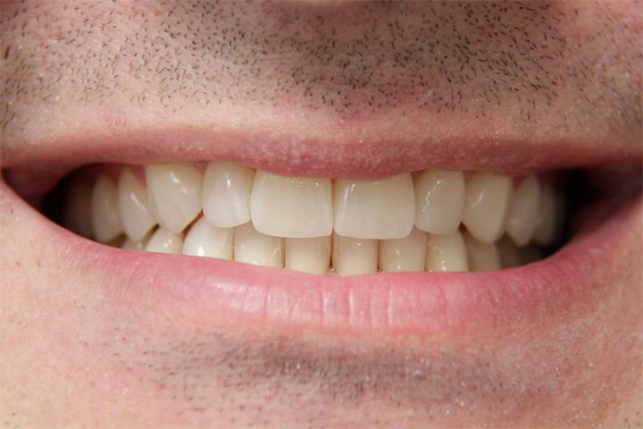 Lentes de contato superiores e dentes inferiores clareados.