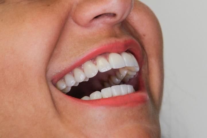 Lentes de contato Dental superiores e inferiores